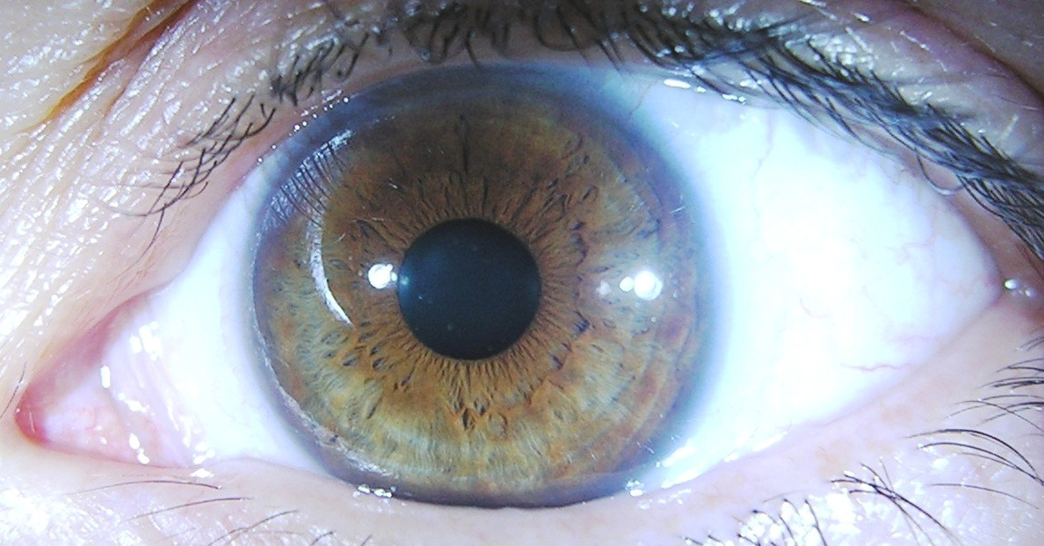 iridology all health